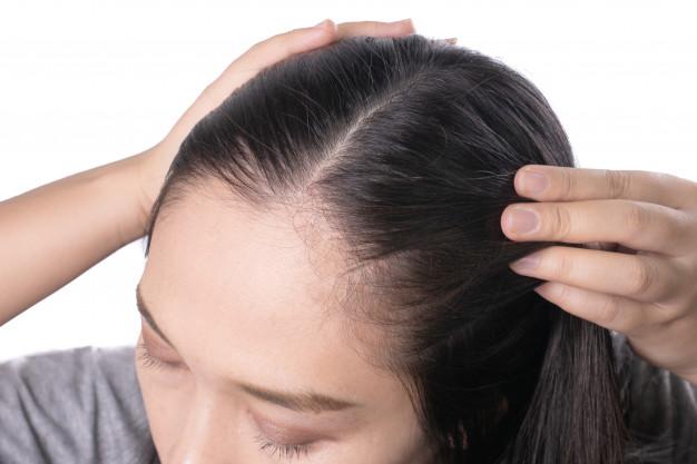 Penyebab Penipisan rambut dan solusinya