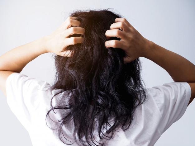Penyebab Kulit Kepala Gatal dan solusinya