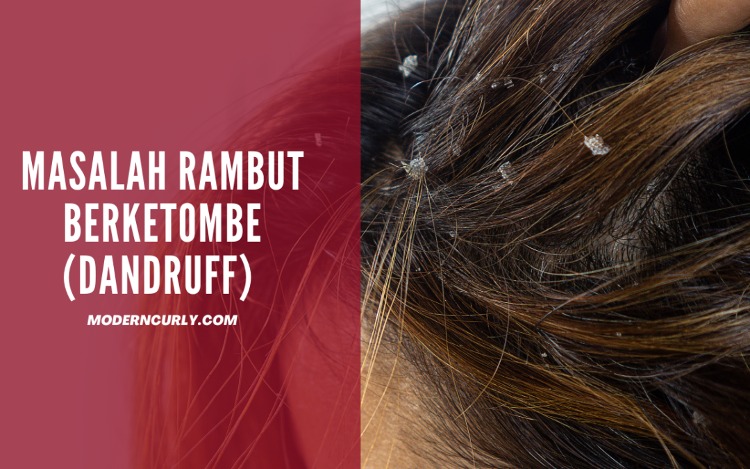 Masalah Rambut Berketombe: Ciri-Ciri, Penyebab dan Cara Mengatasinya!